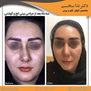 جراحی بینی در کاشان